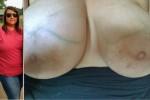 Free porn pics of Saggy tit big lip Milf Sally 1 of 88 pics